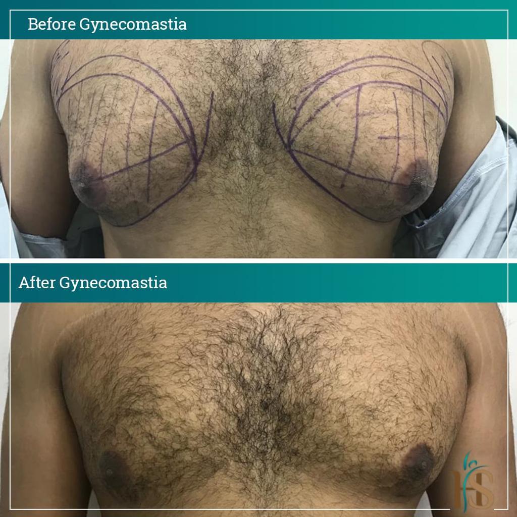 gynecomastia surgery uk