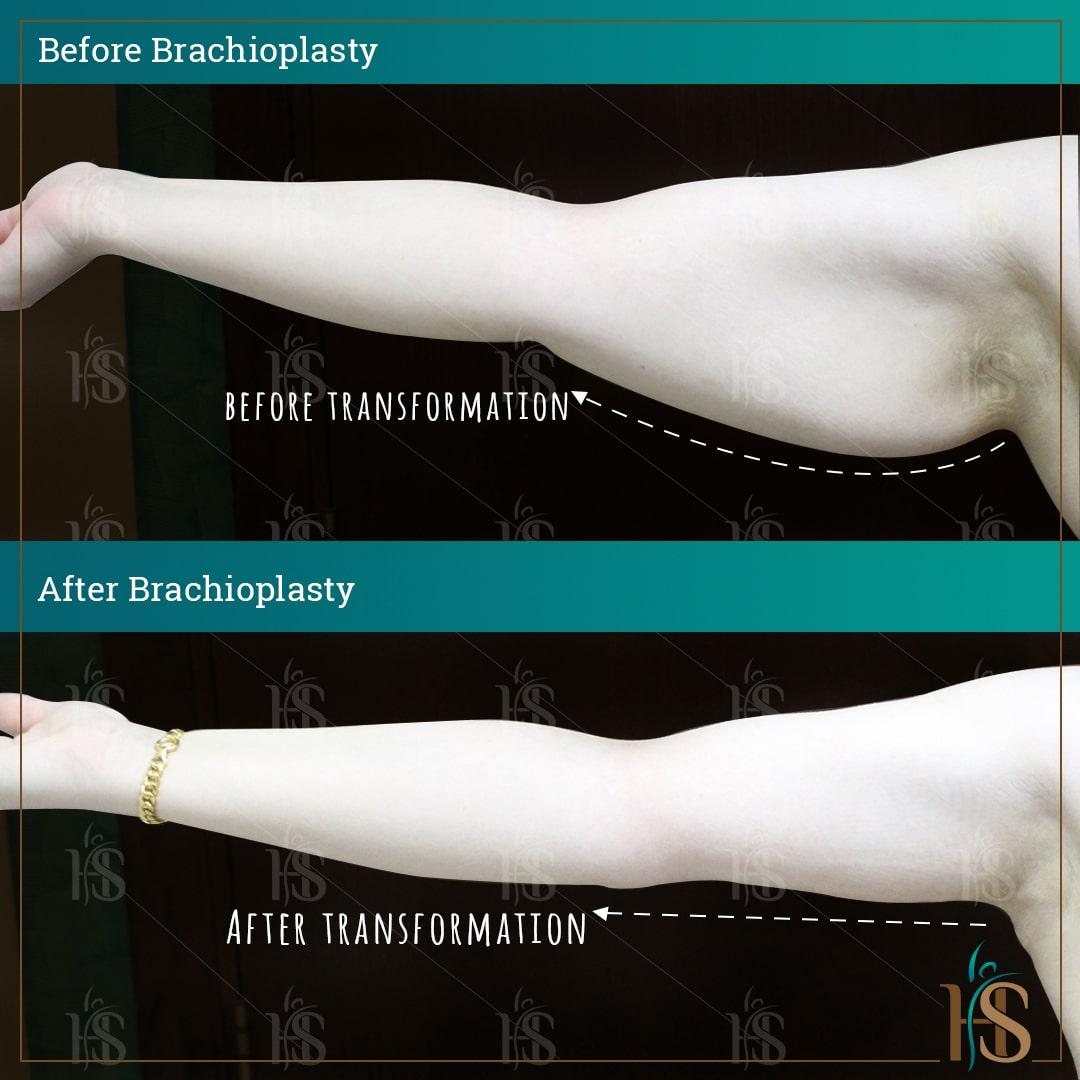 Brachioplasty results - by Hasan Surgery London - best plastic surgery clinic in London UK