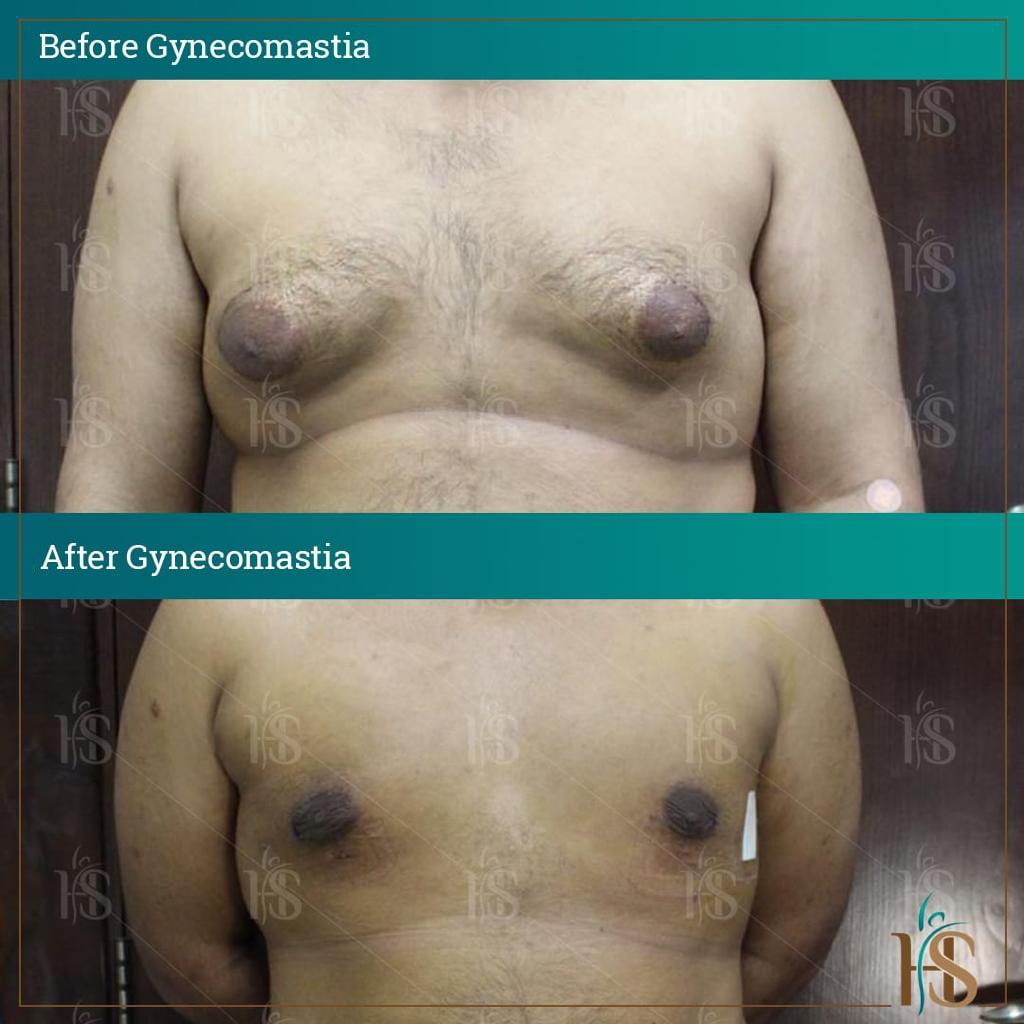 best gynecomastia surgeon in uk