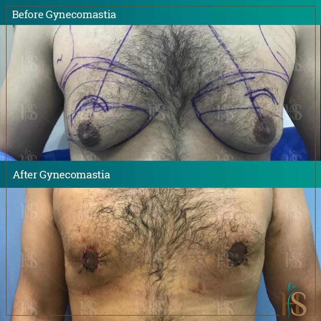 gynecomastia surgery in london