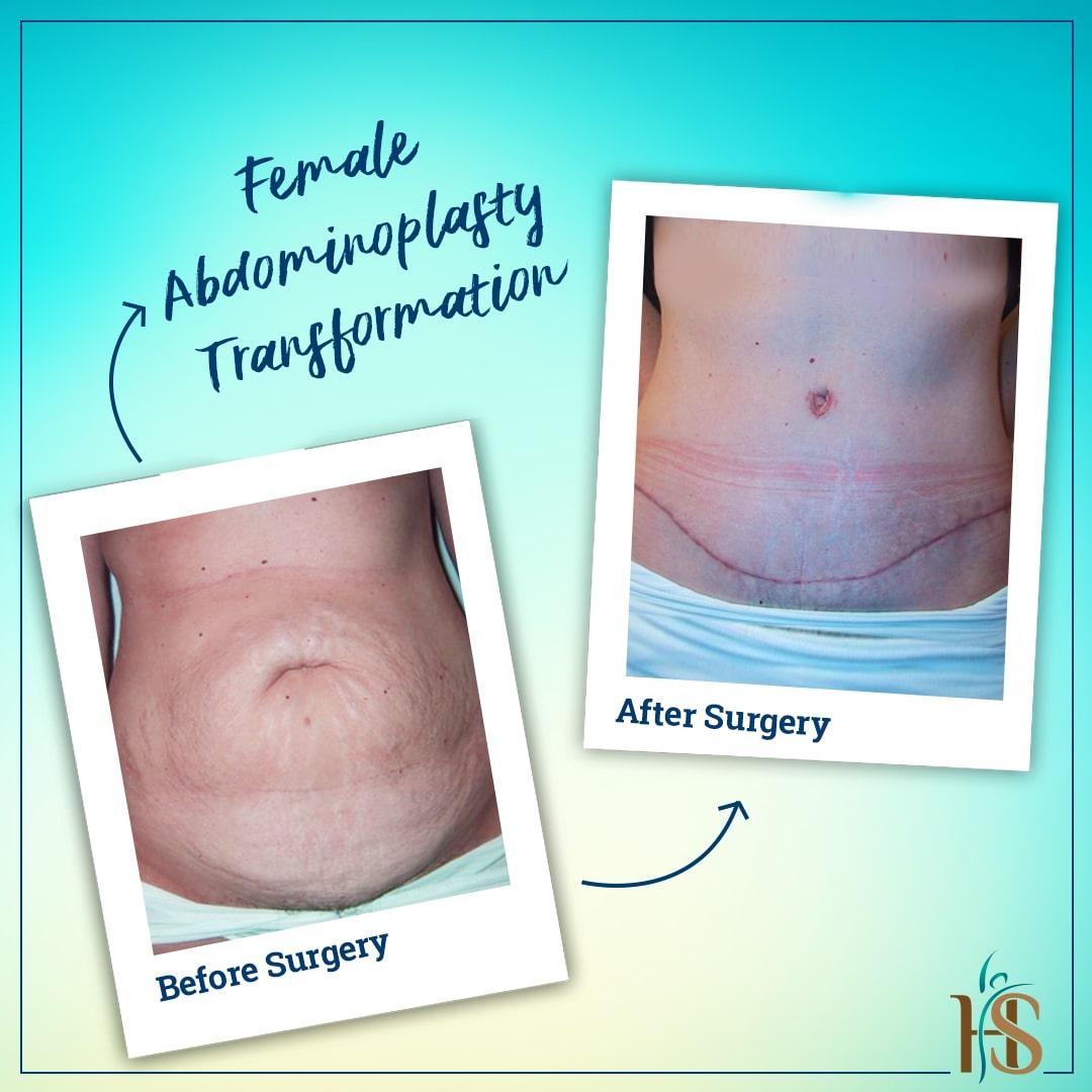 female abdominoplasty london uk - before after