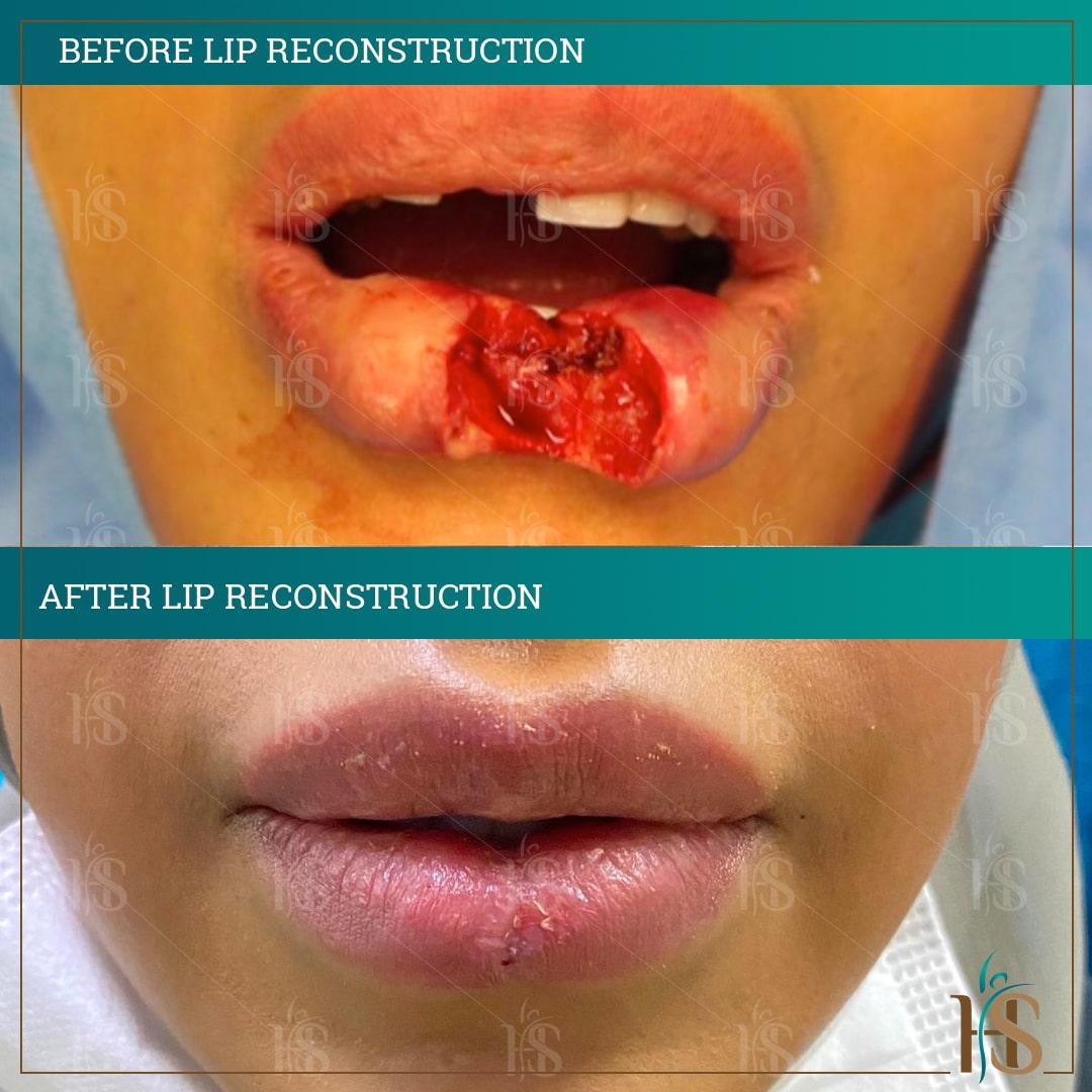 reconstructive skin surgery - lip reconstructive - @ Hasan Surgery London