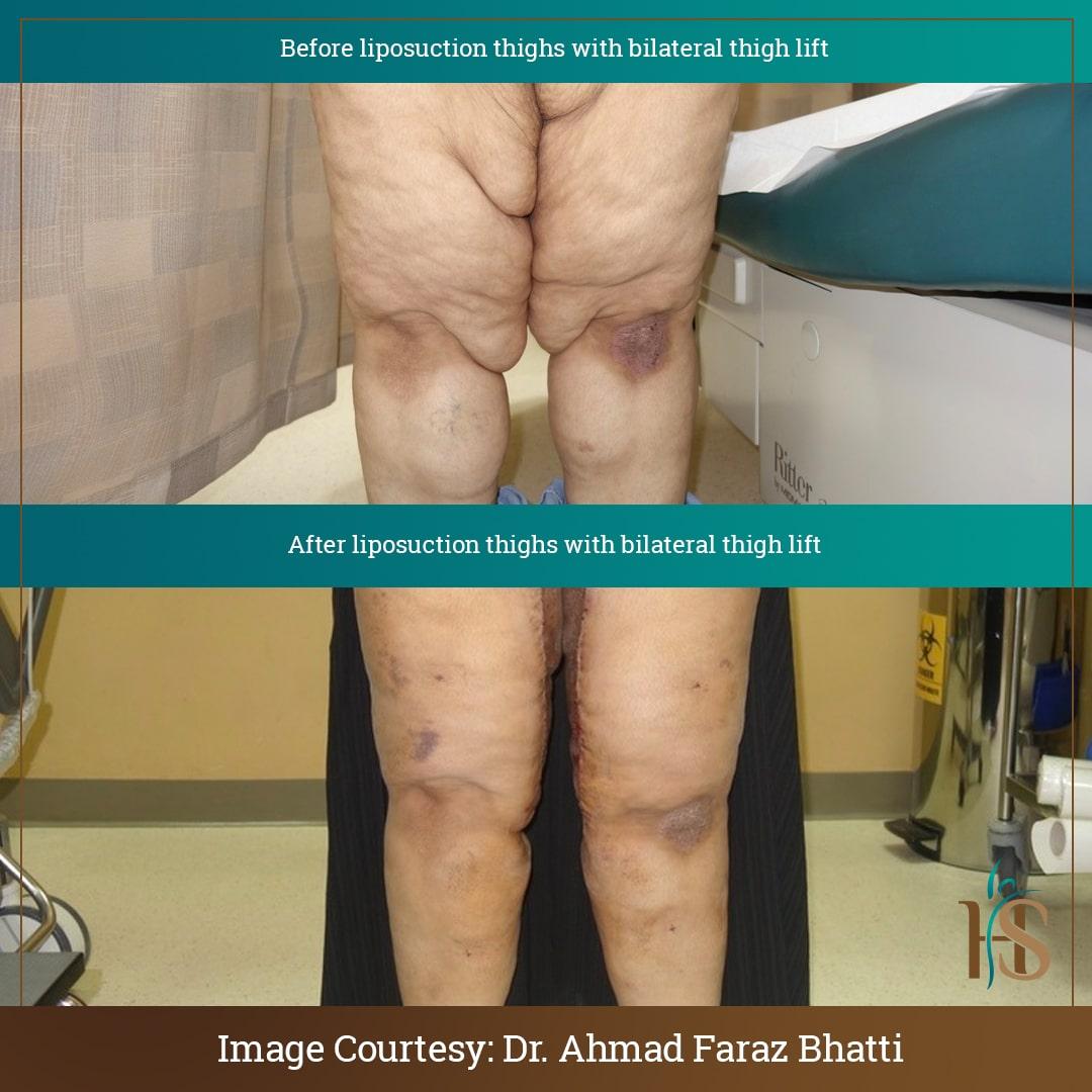 thigh liposuction thigh lift london
