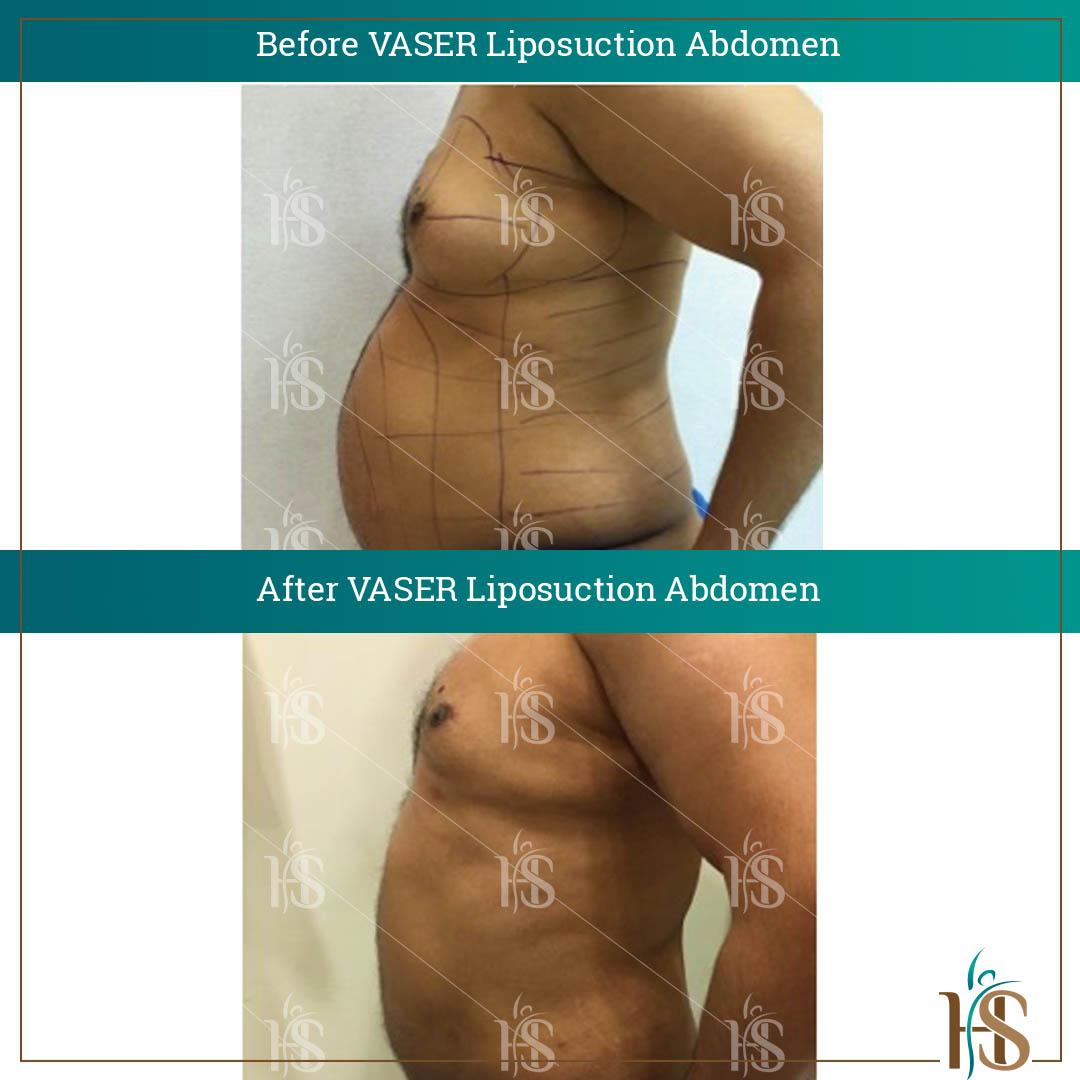 vaser liposuction abdomen london uk