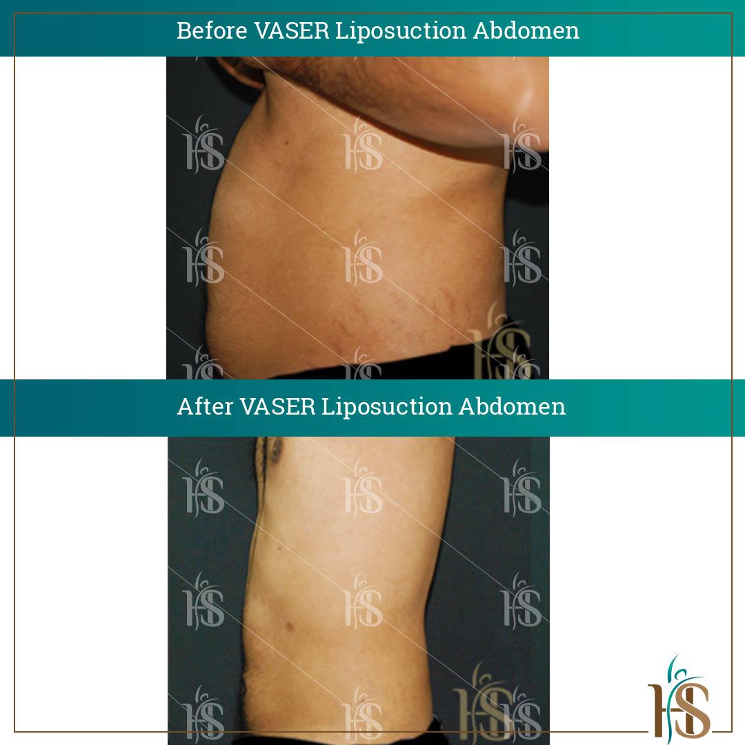 vaser liposuction london before after