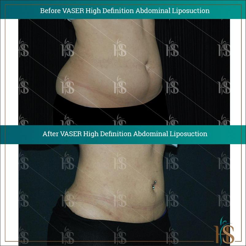 abdomen vaser hi def liposuction london