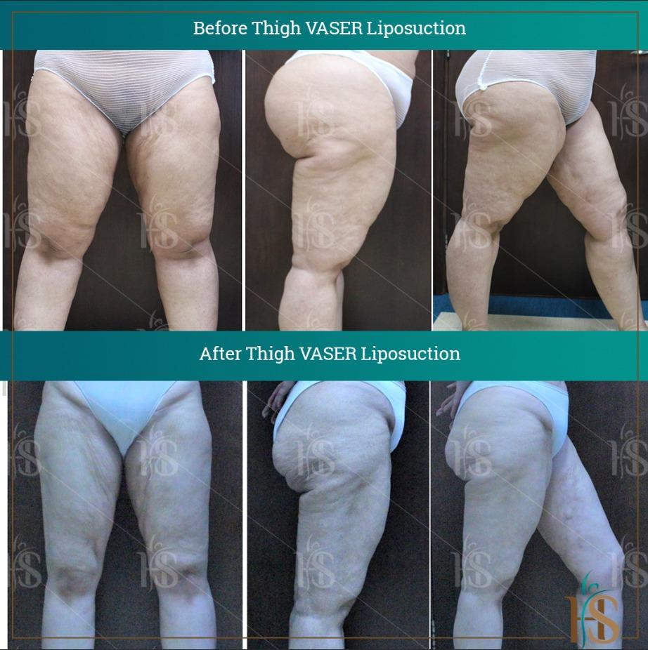 thigh vaser liposuction london uk